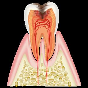 C3 神経 (歯髄)に達したむし歯