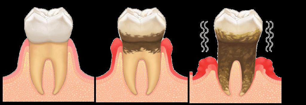 歯周病の経過